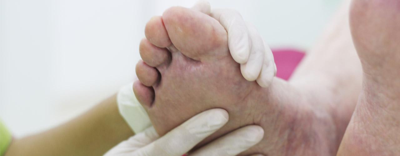 Pie diabético en clínica de podología en Elche